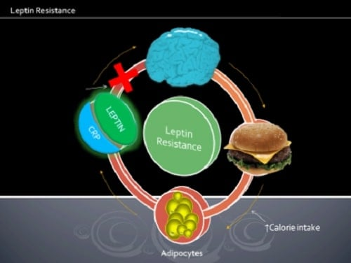 intermittent fasting and leptin resistance